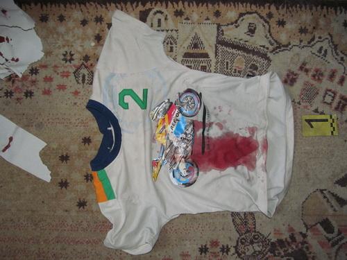 В Минске отец нанес ножевое ранение своему 10-летнему сыну