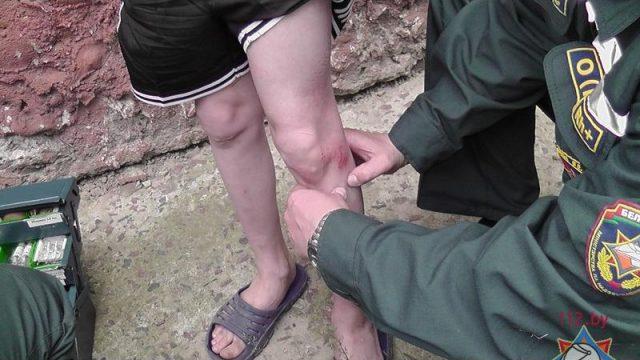 нога ребёнка застряла между прутьями