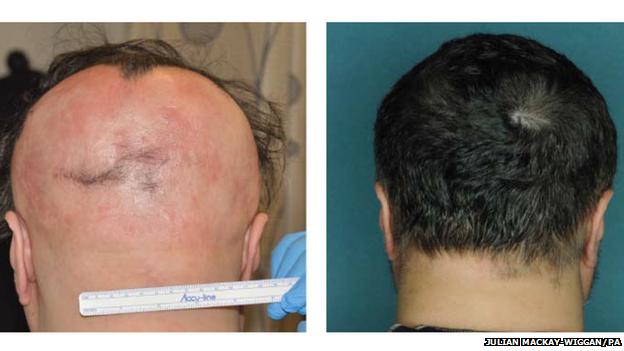 После всего пяти месяцев терапии у пациентов полностью восстановился волосяной покров головы