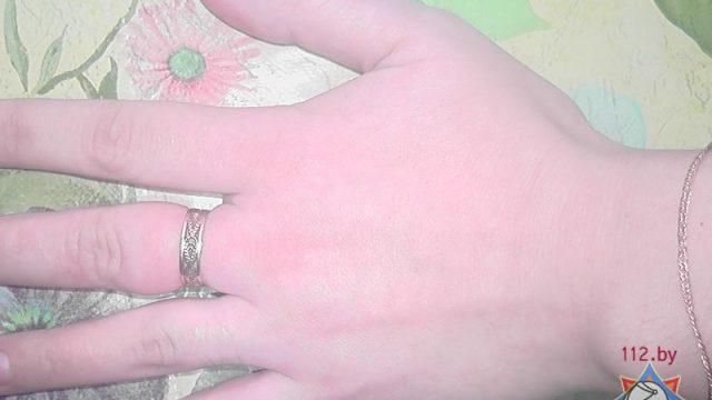 В Гомеле женщина не смогла снять кольцо с отекшей руки: понадобилась помощь спасателей