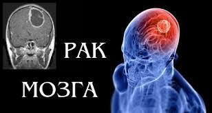 У взорвавшего себя в Бобруйске мужчины был рак мозга