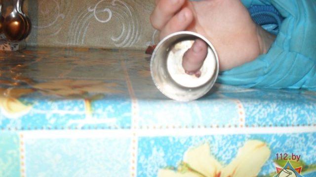 В Гомельской области 11-летняя девочка не могла достать палец из металлического подсвечника