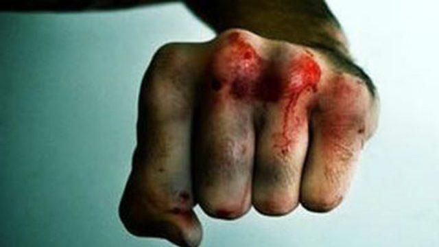 Бобруйчанин избил жену до смерти